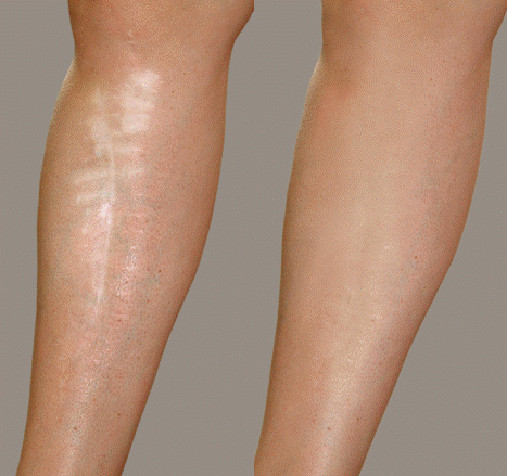 Sue York Before and after Leg Scar